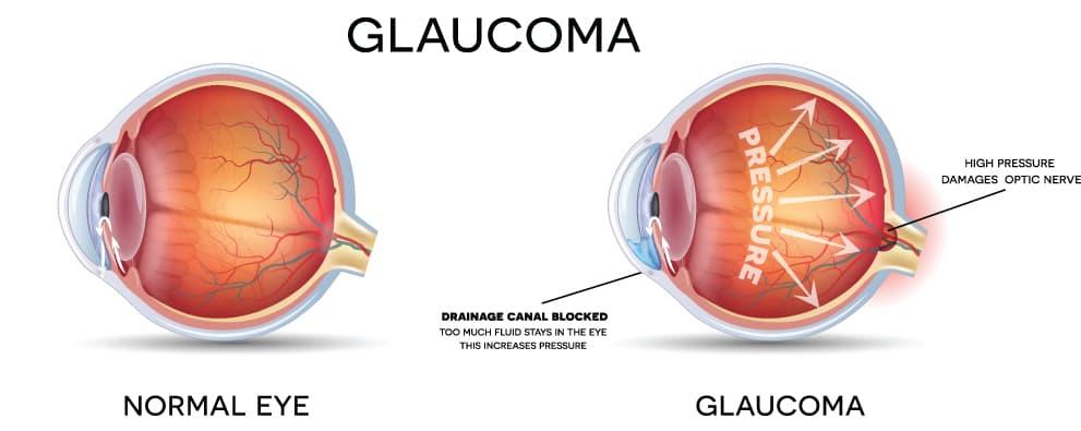 Glaucoma Diagram